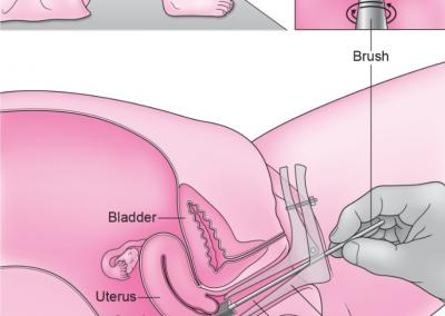 Cervical Screening (Pap/Smear) Test