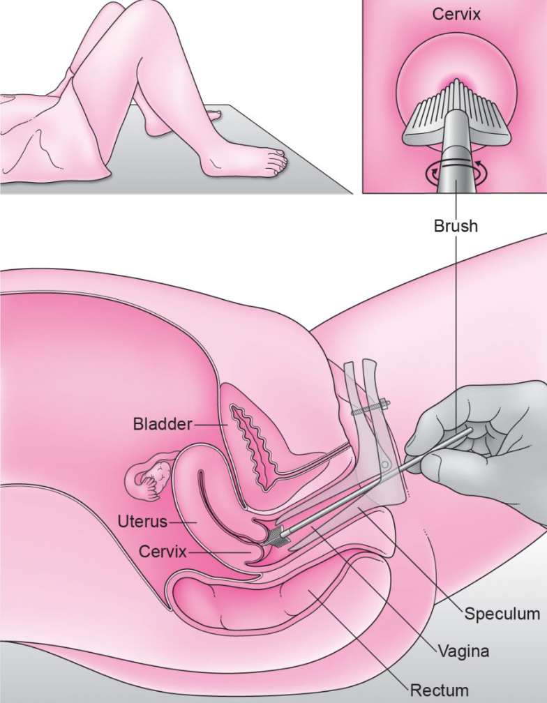 pap smear procedure