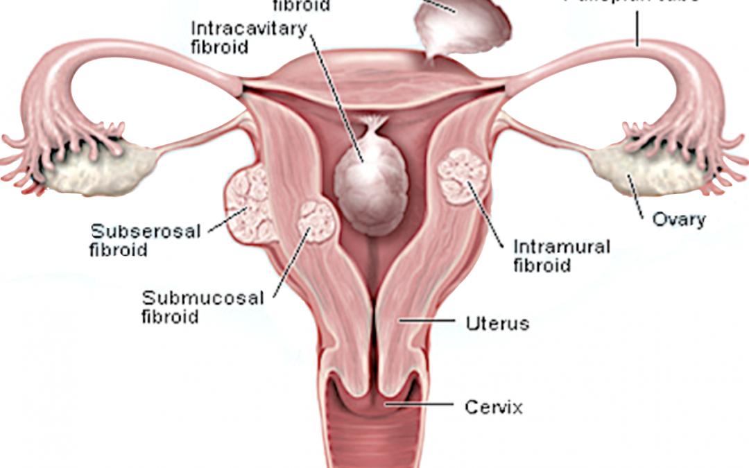 Myomectomy West London | Understanding the Procedure