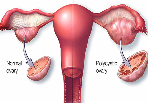 Polycystic Ovary Syndrome (PCOS)