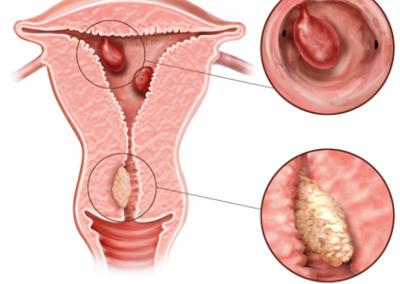 Endometrial Polyps